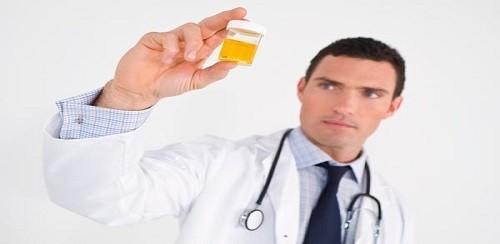 Urine Analisys