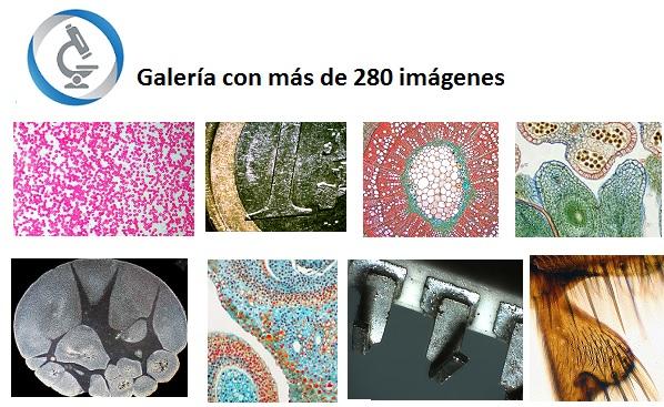 Galeria imagenes microscopia tiendamicroscopios